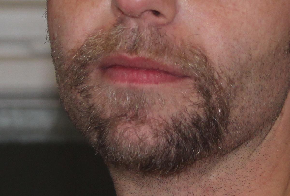 Mund mit Bart